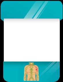 Imagem de uma card sobre Linfoma e Mielona